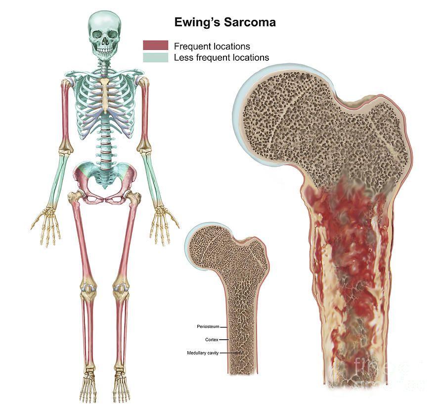 ewing sarcoma cancer)