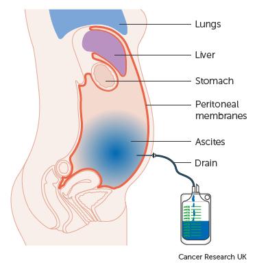 cancer and abdominal fluid)