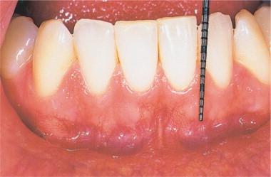 cancer bucal gingivitis enterobiasis que causa