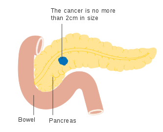 cancer cap de pancreas simptome
