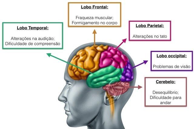 cancer cerebral nivel 3