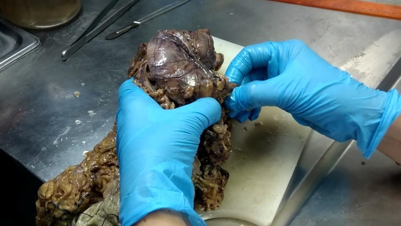 hpv causes hives virus del papiloma humano verrugas o herpes genital
