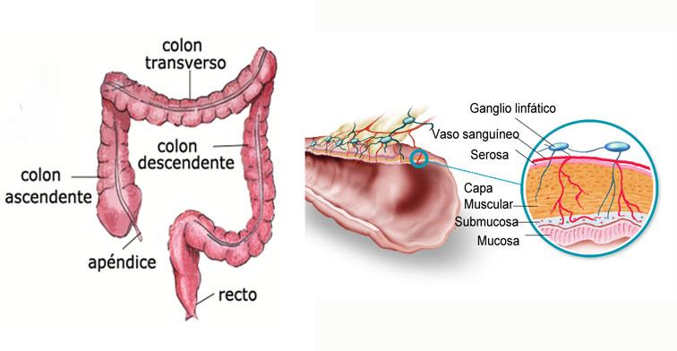 cancer de colon localizado en el ciego)