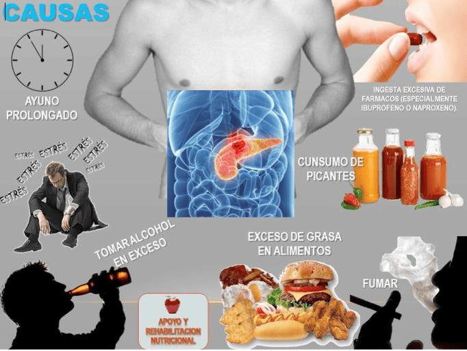 cancer de pancreas prevencion)