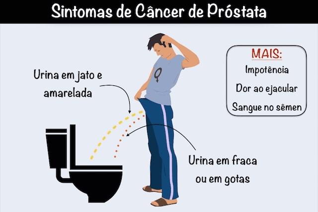 cancer de prostata sintomas sintomas y caracteristicas del papiloma humano en hombres
