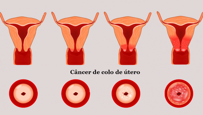 cancer de utero hpv sintomas