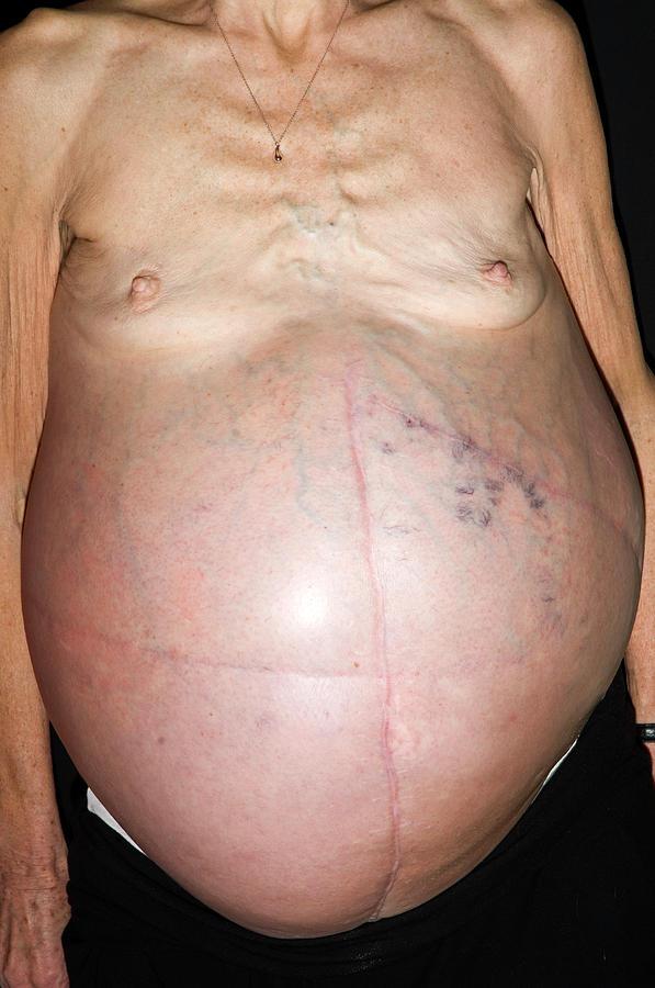 cancer distension abdominal