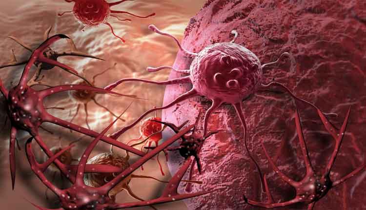 cancer e amigdalite