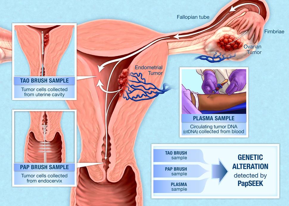cancer endometrial ovarian