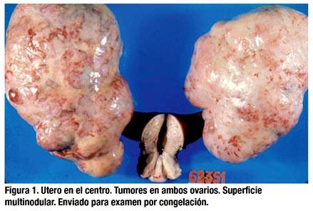 cancer epitelial ovario)
