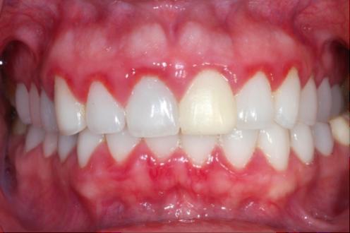 cancer dentar