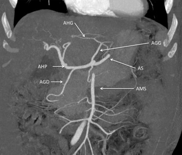 cancer in hepatic artery