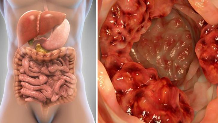 cancer la colon manifestari)