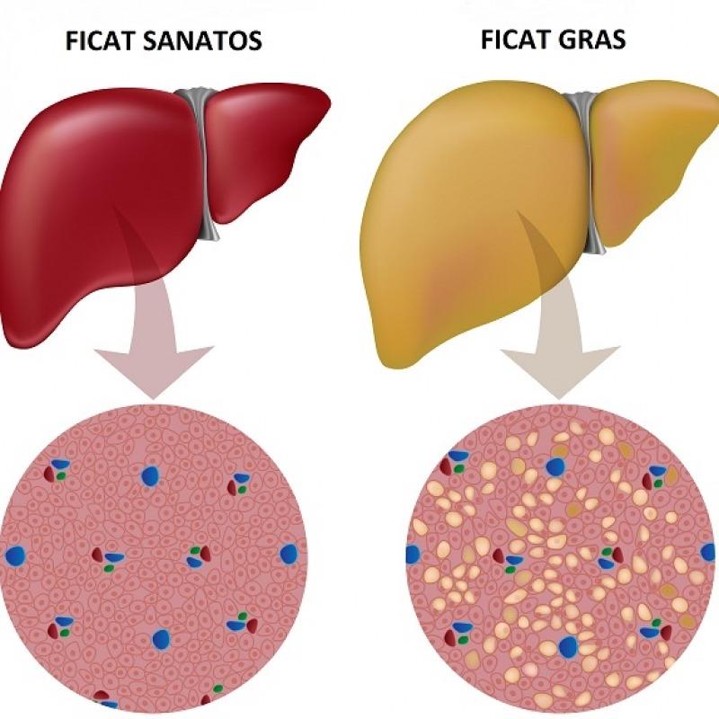 Regimul alimentar in bolile de ficat