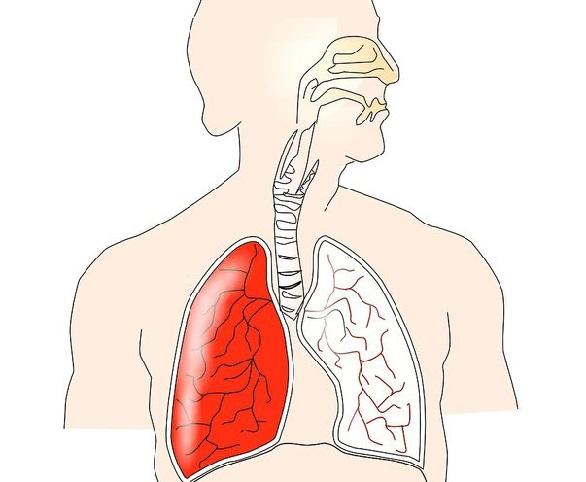 cancer la gat stadiul 4)