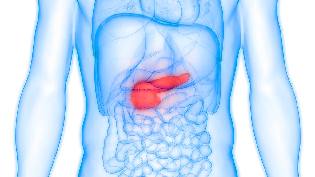 cancer pancreas recidive
