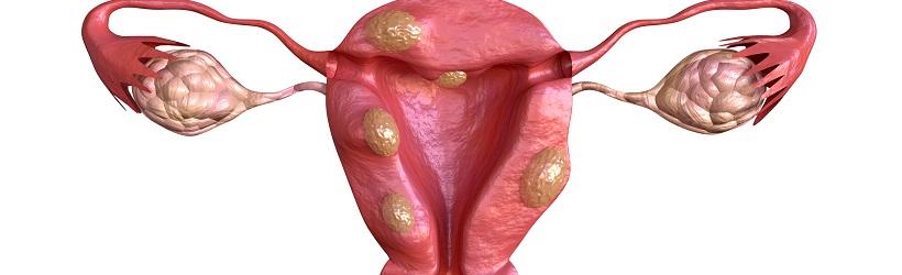 Semne de extindere a venelor abdominale