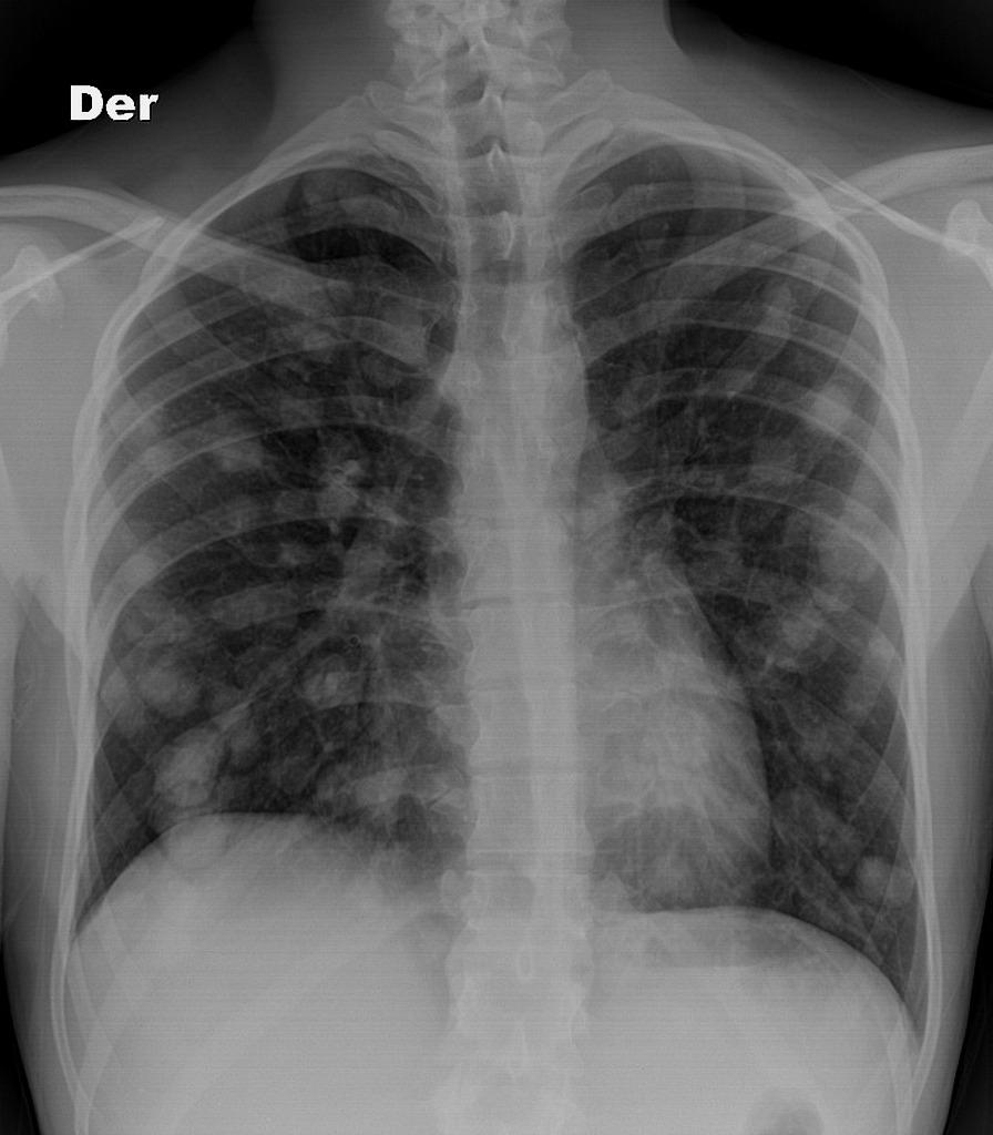 cancer pulmonar bilateral