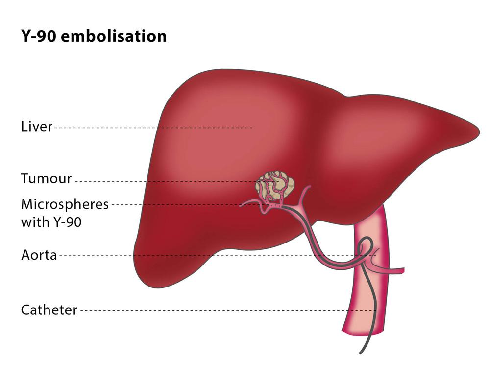 cancer pulmonar cu metastaze la ficat