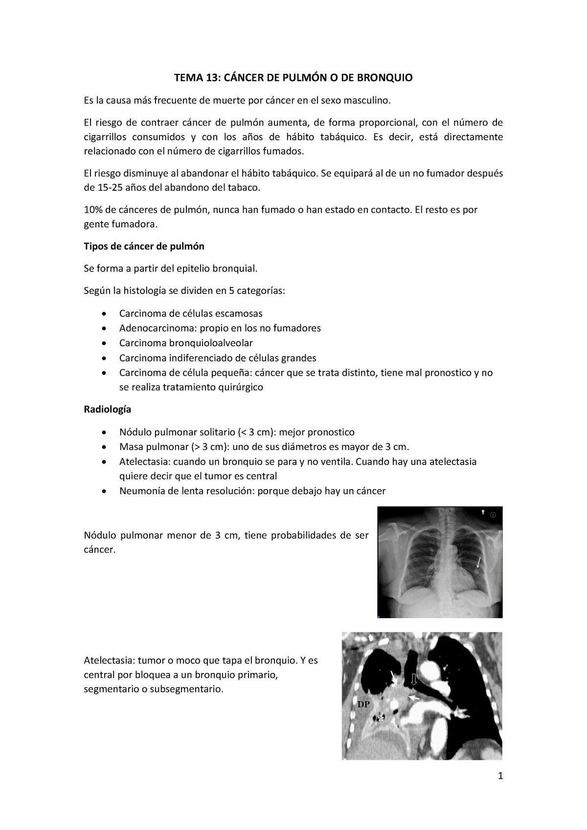 cancer pulmonar de 3 cm)