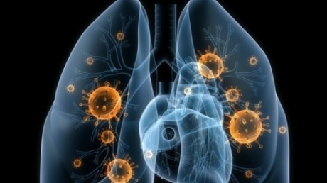 cancer pulmonar tipuri