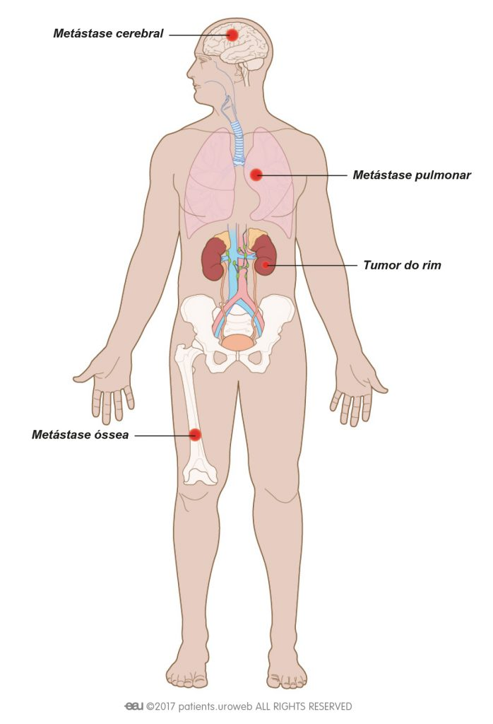 cancer renal metastasis pulmonar)