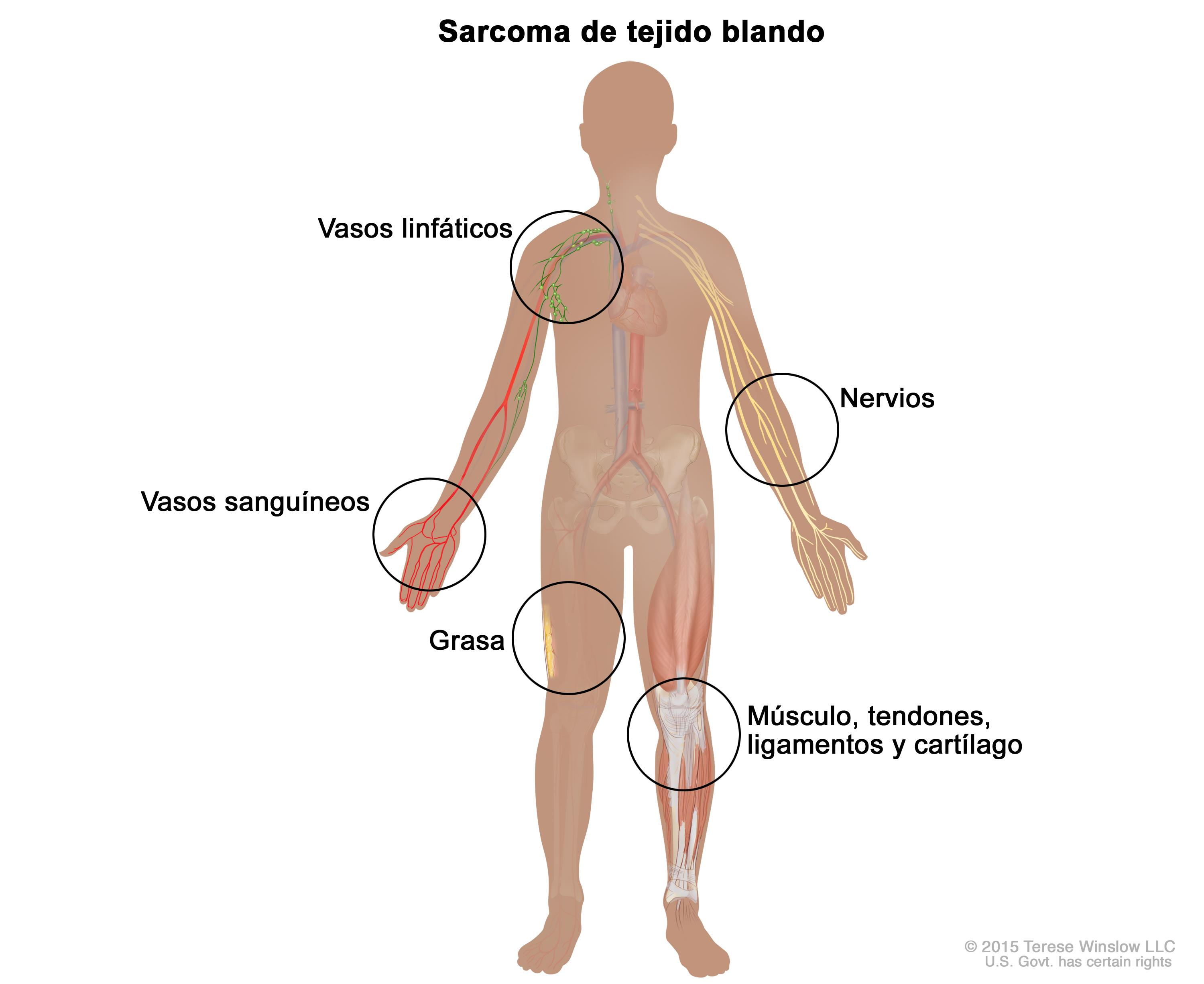 cancer sarcoma en ninos)