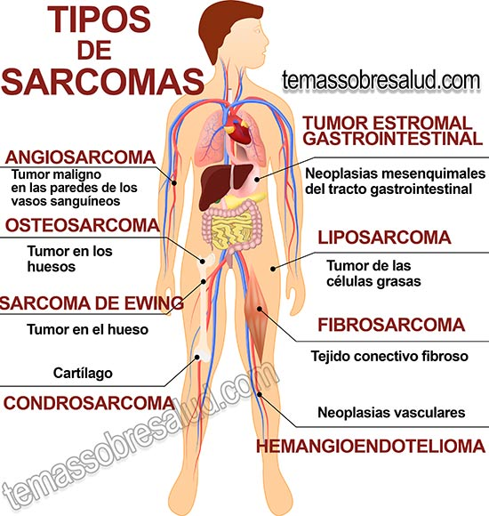 cancer sarcoma sintomas)