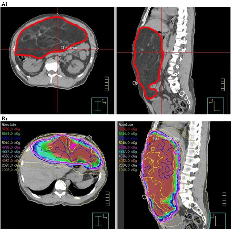 cancer sarcoma retroperitoneal