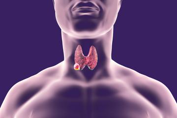 Alimente contraindicate pentru tiroidă