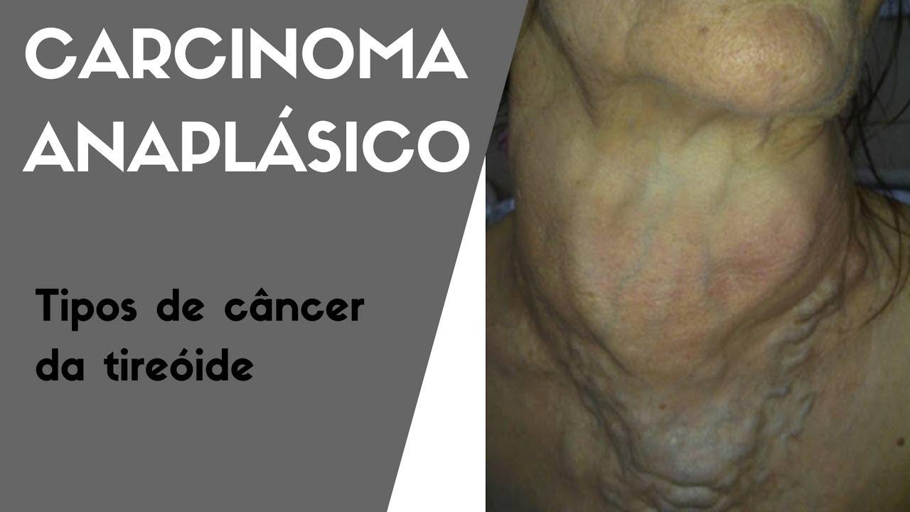 Tumori tiroidiene gigante - dificultăţi terapeutice