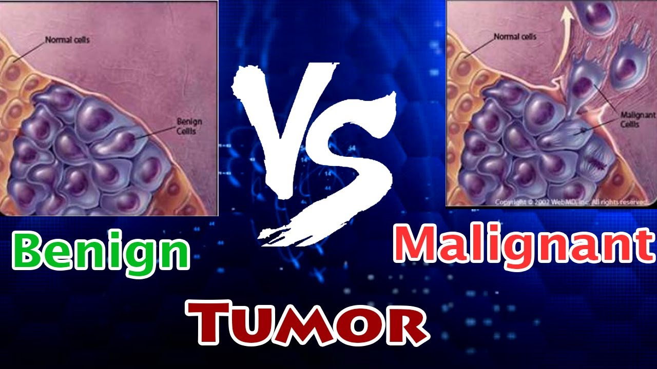 Cancer types benign malignant, Traducere