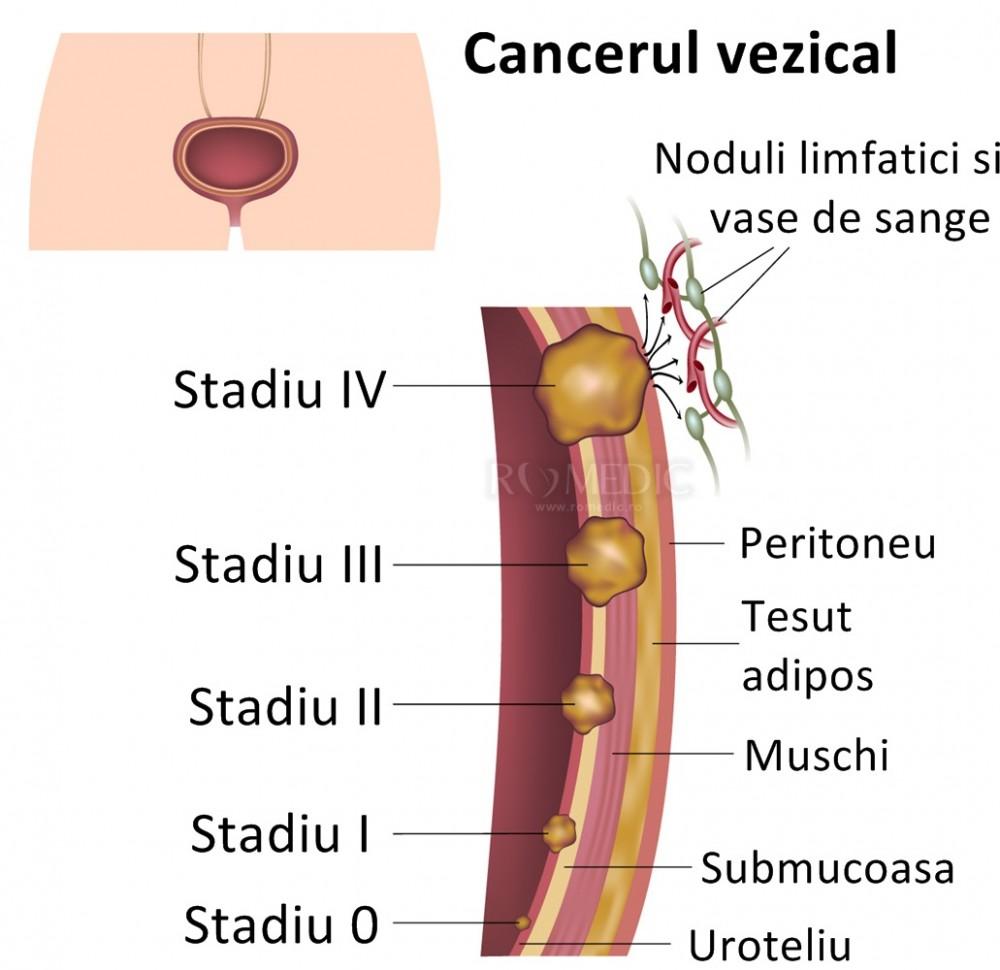cancer vezica urinara operatie)