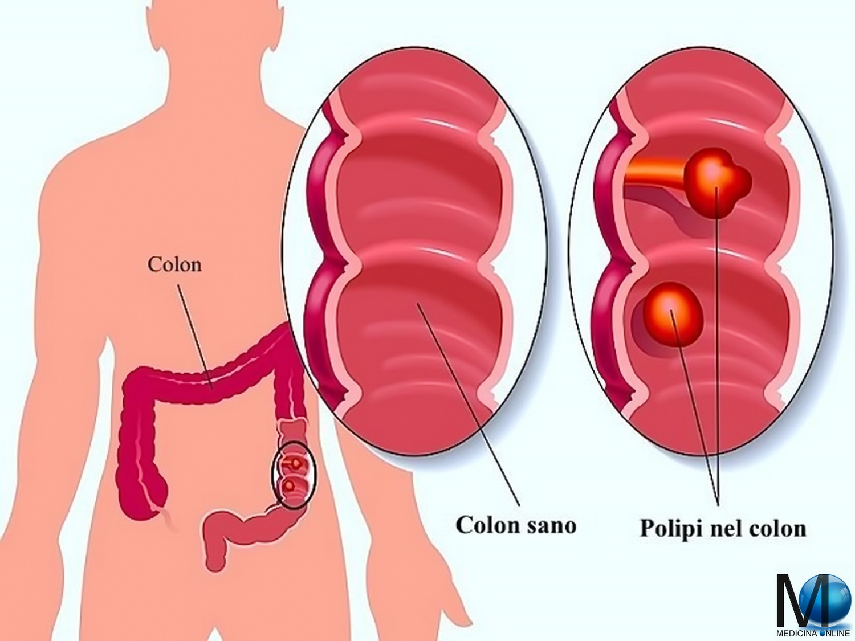 cancerul de colon se vede la ecografie