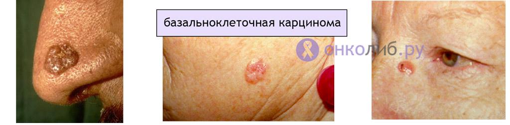 Fereste-te de cancerul de piele!
