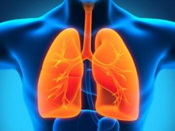 cancerul pulmonar se vindeca)