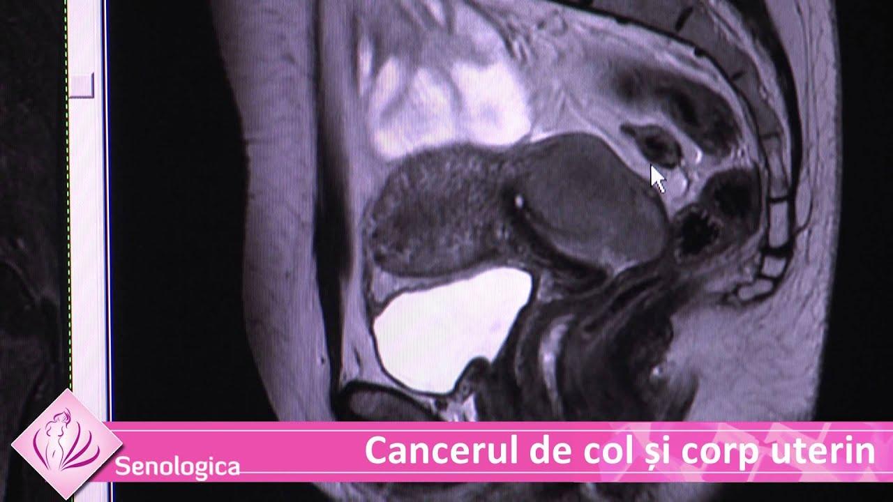 cancerul si fibromul uterin)