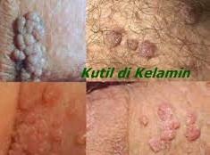 cara menghilangkan virus hpv pada wanita)