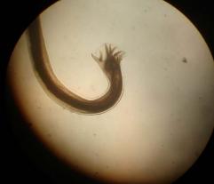 paraziti lidskem tele
