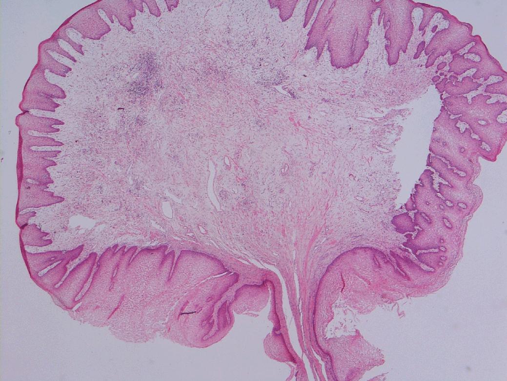 squamous papilloma perineum