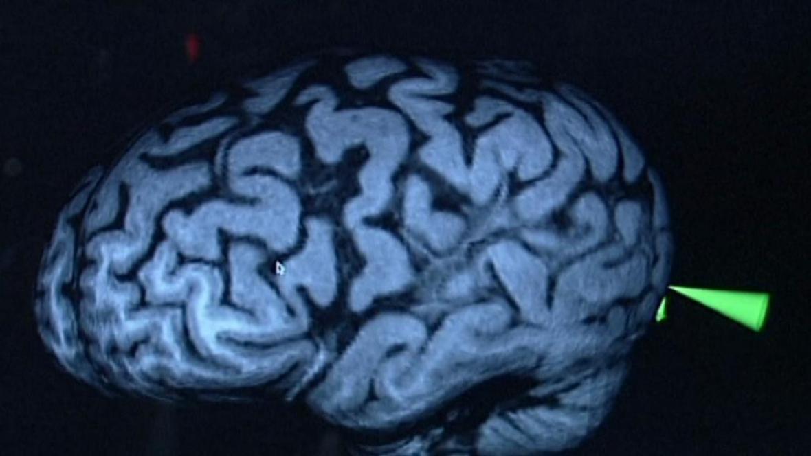 parazit v mozku
