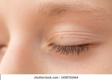 papilloma on eyelid pictures)