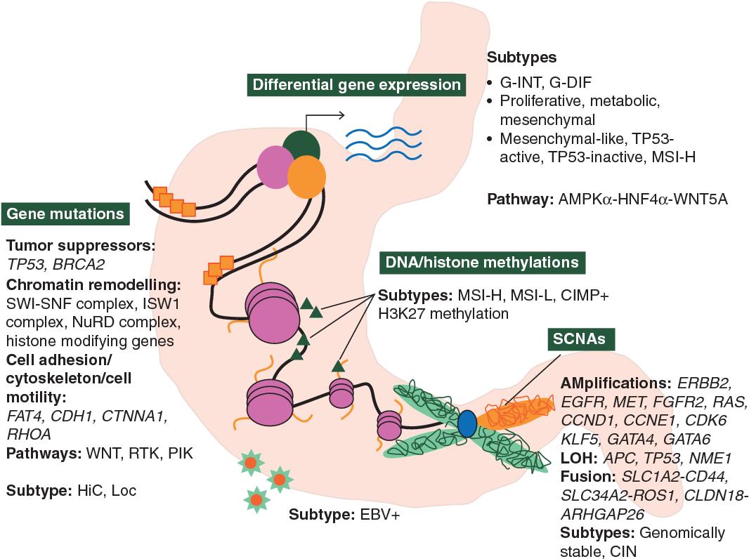 gastric cancer molecular classification)