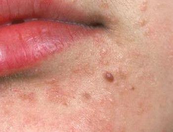 hpv virus flat warts)