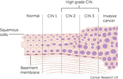 4. Patogeneza cancerului de col uterin