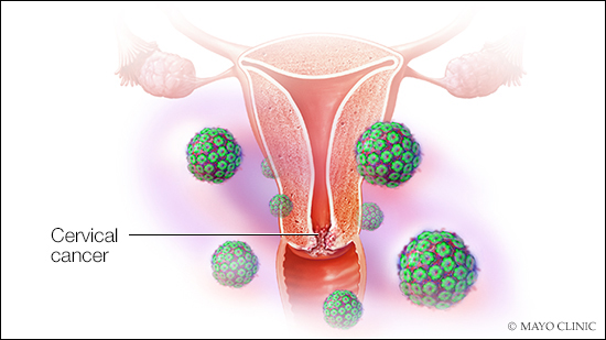 cervical cancer from hpv treatment)