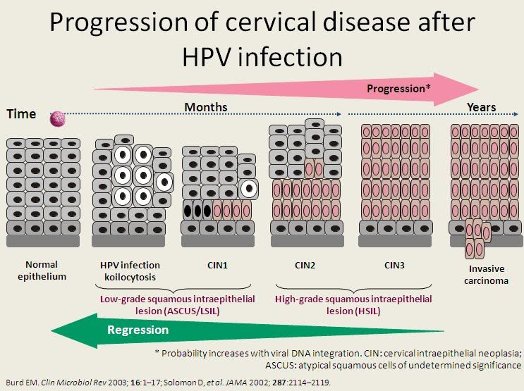 cervical cancer hpv infection)