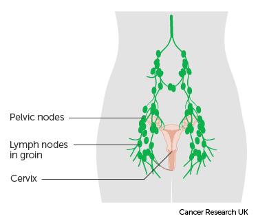 cervical cancer in lymph nodes