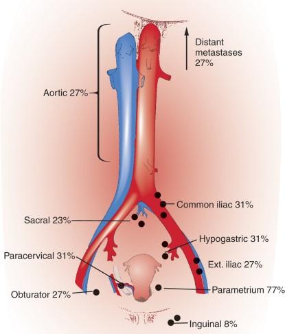 cervical cancer lymph node spread)