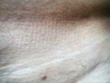 condyloma acuminata dermnet
